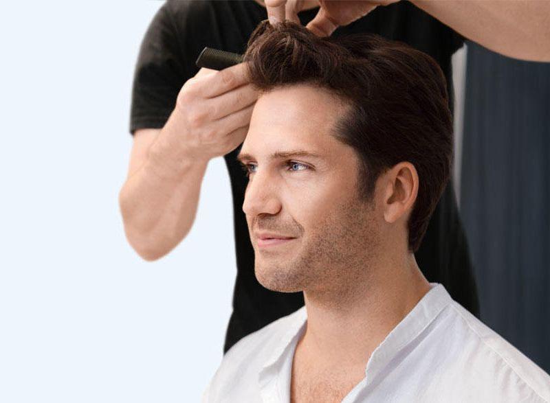 Dermabrazja skóry głowy NIOXIN